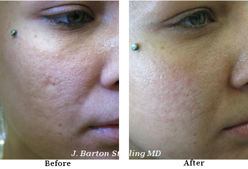 Acne Scars Removal Treatment J Barton Sterling Md